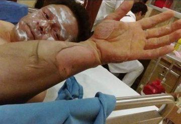 Bombero de Xalapa con graves quemaduras tras atender una fuga de gas