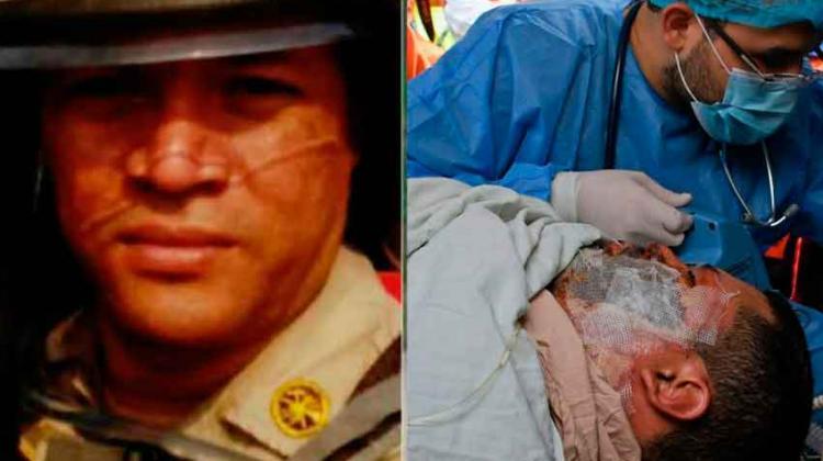 Fallece uno de los bomberos trasladados a México